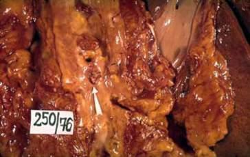 Инфаркт тонкой кишки вследствие тромбоза (макропрепарат).