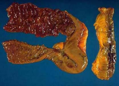 Кишечное кровотечение (тонкая кишка) (макропрепарат). фото 1.