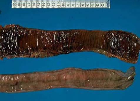 Некротические изменения всех слоев стенки тонкой кишки вследствие ишемии при механической кишечной непроходимости (макропрепарат).
