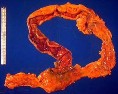 Болезнь Крона: гранулематозная альтерация тонкой кишки (макропрепарат).