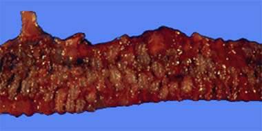 Интестинальный кистозный пневматоз: вид со стороны слизистой оболочки (макропрепарат).