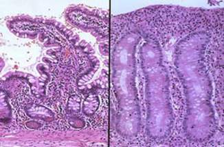 Слева - нормальная слизистая оболочка тонкой кишки; справа - слизистая с уплощенными и укороченными ворсинками при целиакии-спру (микропрепарат).