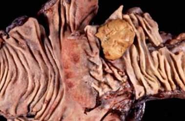 Доброкачественная карциноидная опухоль, развившаяся на илеоцекальном клапане (макропрепарат).