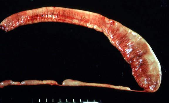 Врожденная атрезия подвздошной кишки: многочисленным сужениям, как бы перевязывающим кишечник с формированием отдельных сегментов, соответствуют участки облитерации кишки (макропрепарат).