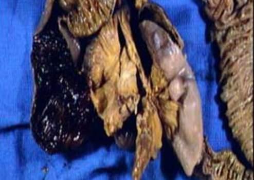 Карциноидная опухоль, развившаяся в дивертикуле Меккеля (макропрепарат). фото 1.