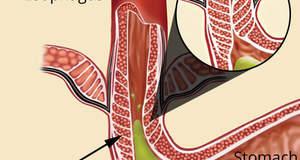 Гастроэзофагальная (или эзофагеальная) рефлюксная болезнь