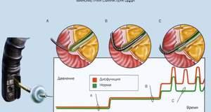 Дисфункции сфинктера Одди и их лечение