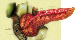 Воспалительные заболевания поджелудочной железы