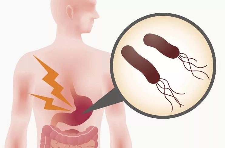 Лечение Н. рylori инфекции (Маастрихский консенсус-2, 2000, Европейская Группа по изучению Н. рylori)