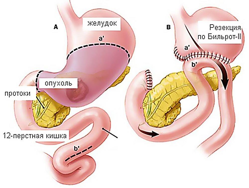 Резекция желудка и постгастрорезекционные синдромы