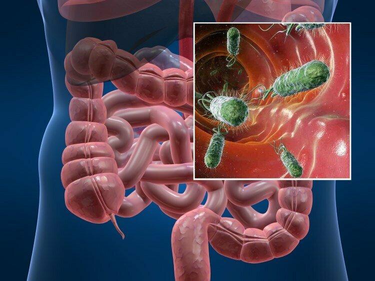 Помогает ли деконтаминация желудочно-кишечного тракта предупредить нозокомиальные инфекции?